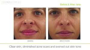 ultraceuticals real skincare academy face and body