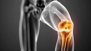 De voorkomende reumatische aandoening: Artrose