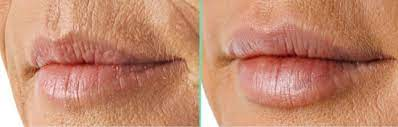 smoker s lines get rid of lip lines
