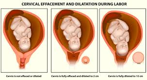 Cervix Dilation Signs And Procedure To Dilate