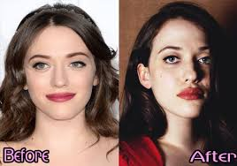 kat dennings bust size kat dennings plastic surgery before after photos celebrities