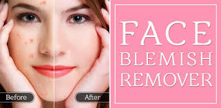 Face <b>Blemish Remover</b> - Smooth Skin & Beautify Face - Apps on ...