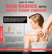 How to Use Apple Cider Vinegar for Skin Rash?