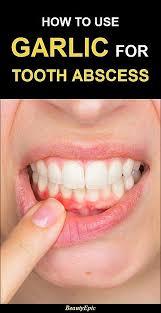 diy dental veneers how to use garlic for tooth abscess health wellness