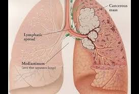 on lung cancer essay on lung cancer