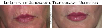 non invasive lip lift with ultherapy