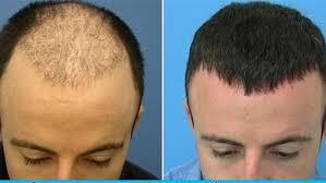 زراعة الشعر في الكويت , تخلص من الصلع الوراثي - حنين الذكريات