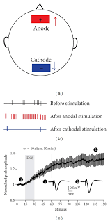Physiological Effects Of Tdcs A Illustration Of The