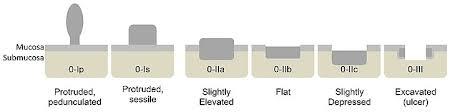 Colon Polyp Size Chart Colorectal Polyp Wikipedia
