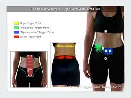 Rectus Abdominis Trigger Points A Six Pack Of Deception