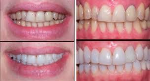 Виниры на зубы в Санкт Петербурге Доступная стоматология  Виниры