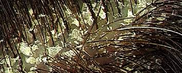 Image result for dandruff