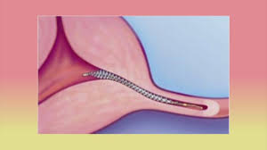 Image result for essure springs