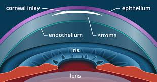 Presbyopia Test Chart Presbyopia Surgery And Monovision Lasik