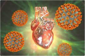 Migliori i risultati clinici in COVID-19 e nella miocardite in relazione  con il vaccino che la miocardite classica in bambini