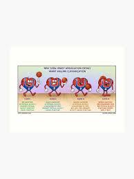 Nyha Classification Chart Functional Classification Of Heart Failure Art Print