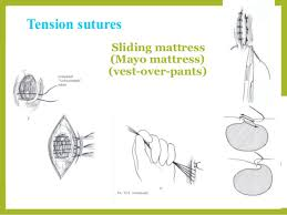 Types Of Suture Patterns