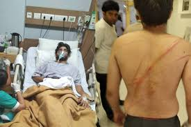 Swiggy Delivery Boys Beat The Customer With Steel Rods