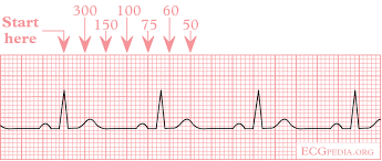 Heart Rate On Ekg Strip Calculation Of The Heart Rate