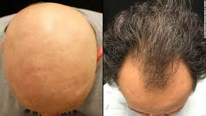 Male Pattern Baldness Cure Classy Drug Reverses One Baldness Type Is Male Pattern Next CNN