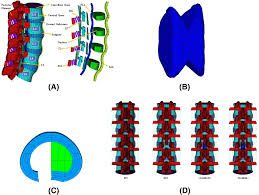 Facets Def Application Of An Interspinous Process Device After