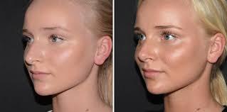 Voor en na foto's plastische chirurgie