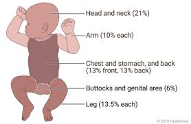 Rule Of 9 S Burn Chart Child Rule Of Nines For Burns In Babies And Young Children