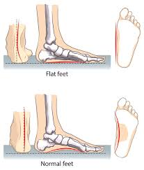 Flat Footed What Causes Flat Feet And What To Do If You Suffer From It