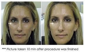 juvederm under eye before and after cheek fillers fillers dermal
