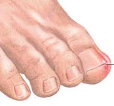 treating painful ingrown toenail