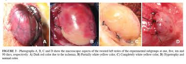 testicular torsion. showing the different colors of surface testis, according to duration its torsion, and hypotrophy at 90 days. testicular torsion