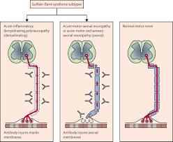 Guillain-Barré syndrome - The Lancet