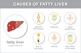Diet Chart For Fatty Liver Grade 3 Fatty Liver Diet Guide