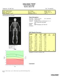 Bone Density Scan Results Chart Hologic Body Composition Report Sample