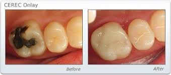 dental onlay dental inlays and onlays melbourne strengthen damaged teeth
