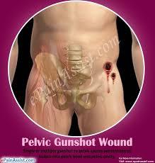 Bullet penetration gunshot wounds