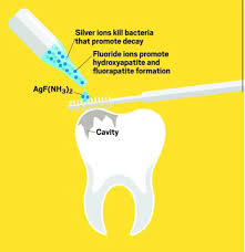 What is Silver Diamine Fluoride? Silver... - Peninsula Pediatric Dentistry  | Facebook
