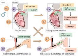 Rh Incompatibility Chart Maternal Rhesus Isoimmunization Rh Incompatibility Medchrome