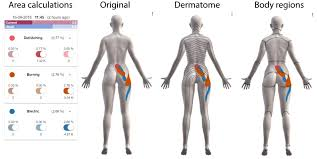 Dermatome Distribution Chart Dermatome Myotome And Simple Body Divisions On Pain Drawings