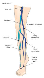 Superficial Venous Thromboses Intracranial Aneurysms And