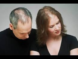Male Pattern Baldness Cure Amazing Effective Hair Loss Treatment For Male And Female Pattern Baldness
