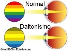 Resultado de imagen de Daltonismo