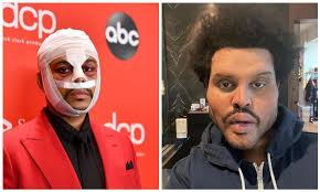 The Weeknd shocks fans with plastic surgery look