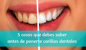 carillas dentales 5 cosas que debes saber antes de ponerte carillas dentales
