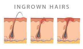 how long do ingrown hairs last top