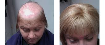 top partial systems female pattern baldness