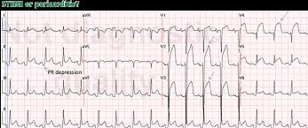 Stemi Leads Chart St Segment Elevation Differential Diagnosis Caveats