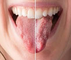 thrush or just white tongue