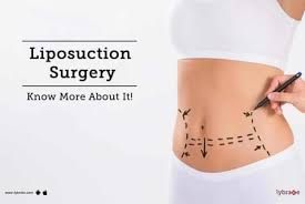 Diet Chart For Weight Loss After C Section Diet Chart For After C Section Patient Diet After C Section