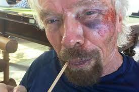 Richard Branson: Unternehmer bei schwerem Fahrradunfall verletzt